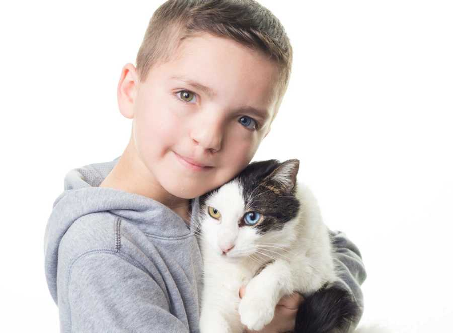 Bullied boy who has different-colored eyes, cleft lip adopts look-alike cat